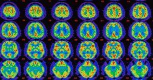 Čo sa udeje s naším mozgom, keď zažívame úplné ticho